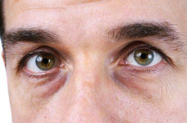 Синяки и темные круги под глазами. Причины и лечение
